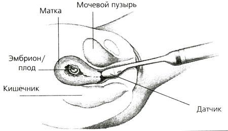 telochki-modelnoy-vneshnosti-porno